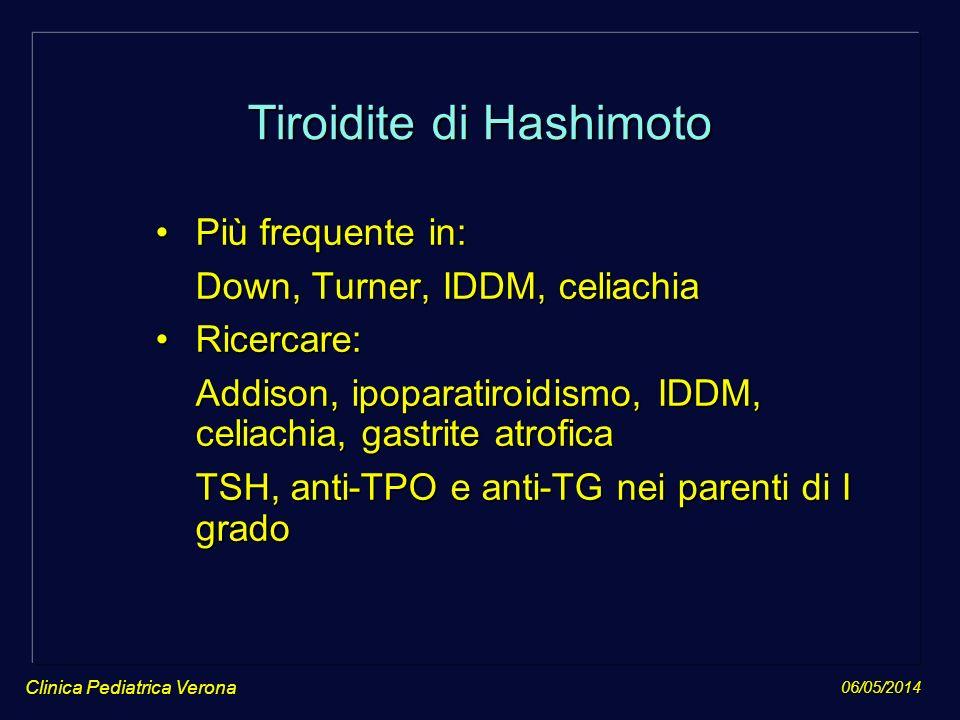 06/05/2014 Tiroidite di Hashimoto Più frequente in:Più frequente in: Down, Turner, IDDM, celiachia Down, Turner, IDDM, celiachia Ricercare:Ricercare: