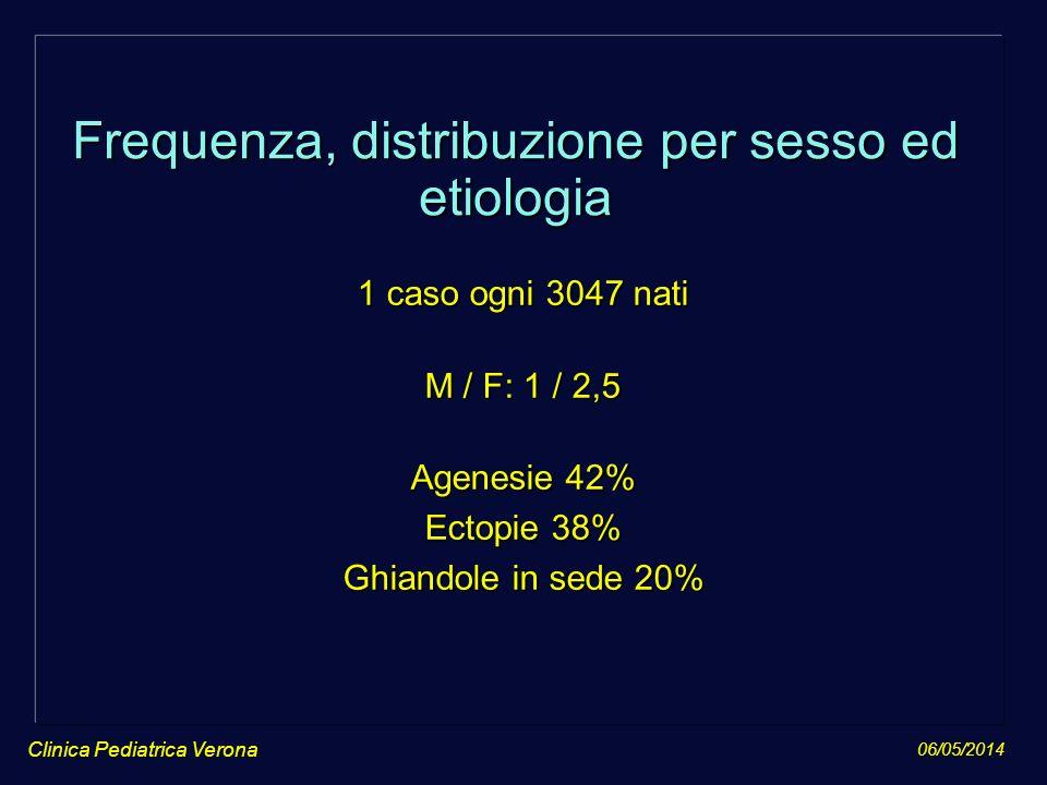 06/05/2014 Clinica Pediatrica Verona Frequenza, distribuzione per sesso ed etiologia 1 caso ogni 3047 nati M / F: 1 / 2,5 Agenesie 42% Ectopie 38% Ghi