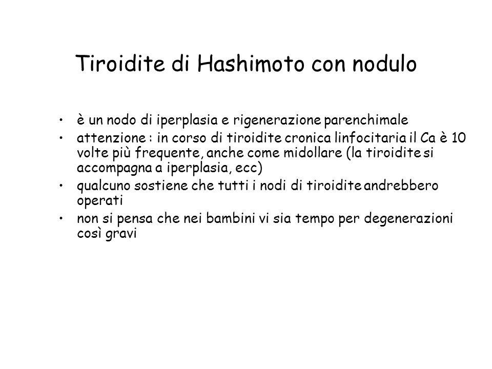 Tiroidite di Hashimoto con nodulo è un nodo di iperplasia e rigenerazione parenchimale attenzione : in corso di tiroidite cronica linfocitaria il Ca è