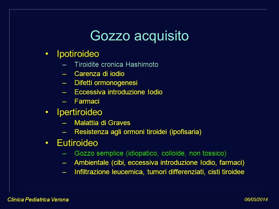 06/05/2014 Clinica Pediatrica Verona Gozzo acquisito IpotiroideoIpotiroideo –Tiroidite cronica Hashimoto –Carenza di iodio –Difetti ormonogenesi –Ecce