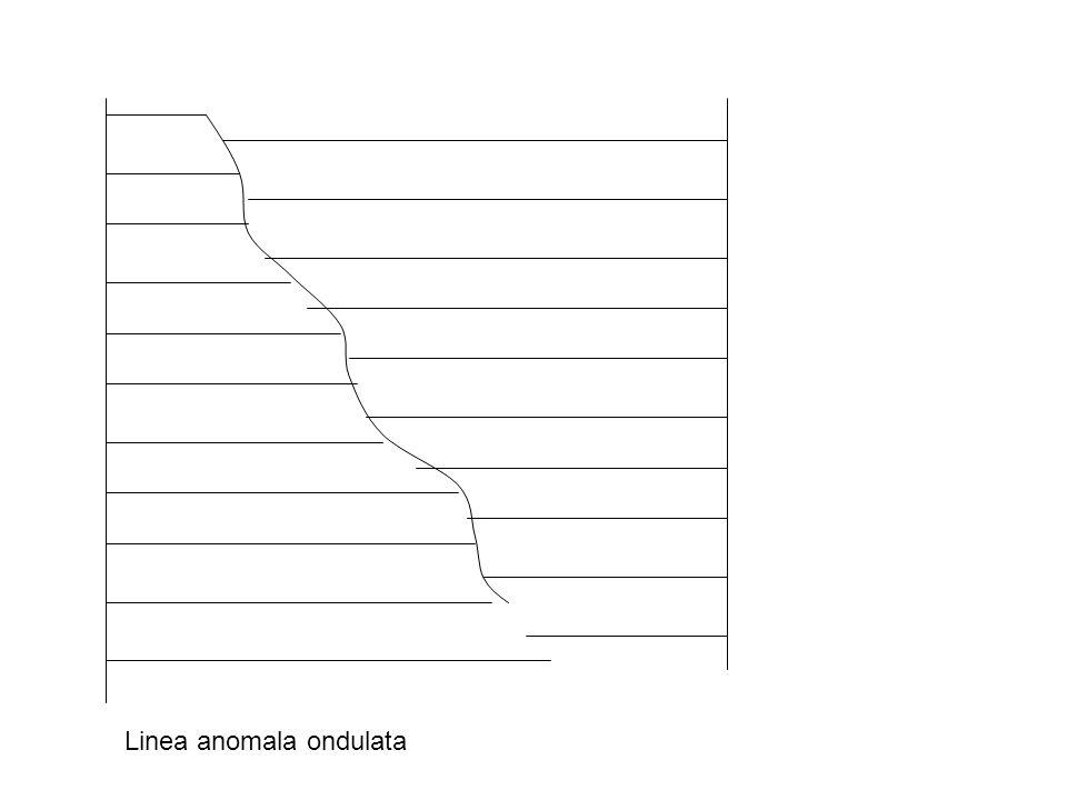 Linea anomala ondulata