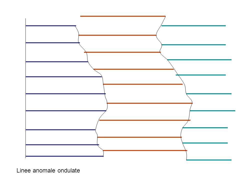 Linee anomale ondulate