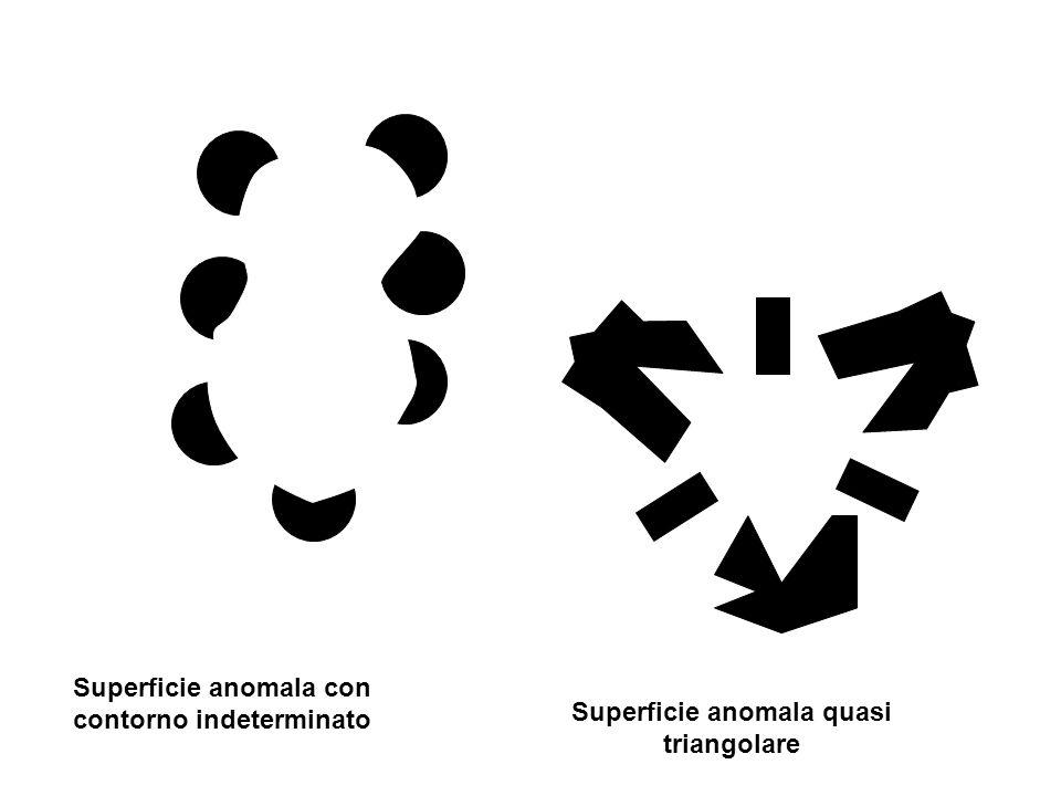 Superficie anomala con contorno indeterminato Superficie anomala quasi triangolare