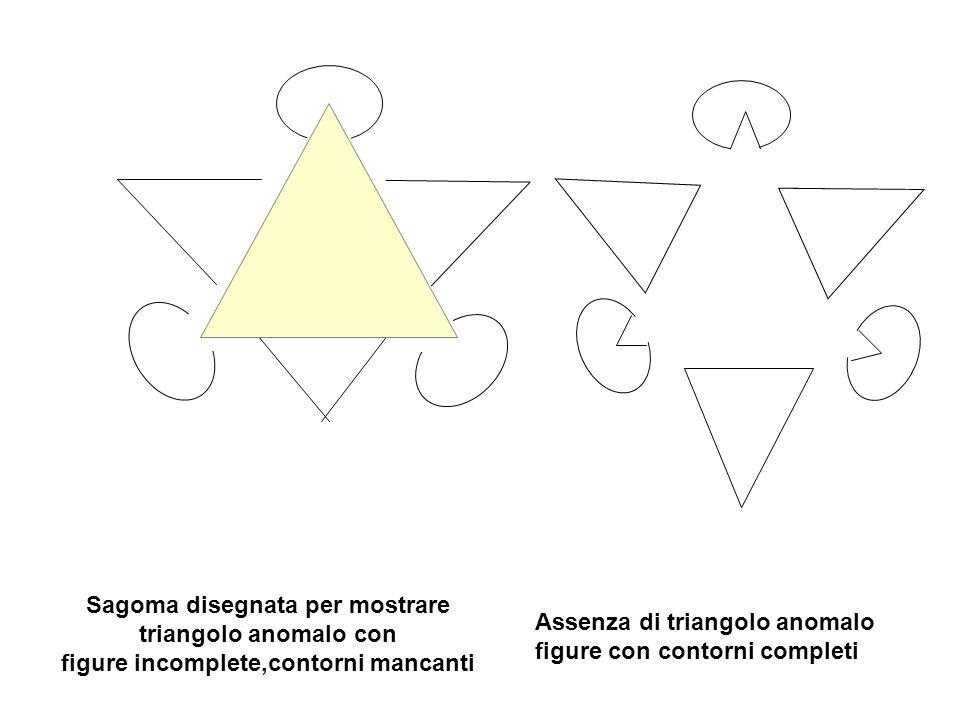 Sagoma disegnata per mostrare triangolo anomalo con figure incomplete,contorni mancanti Assenza di triangolo anomalo figure con contorni completi