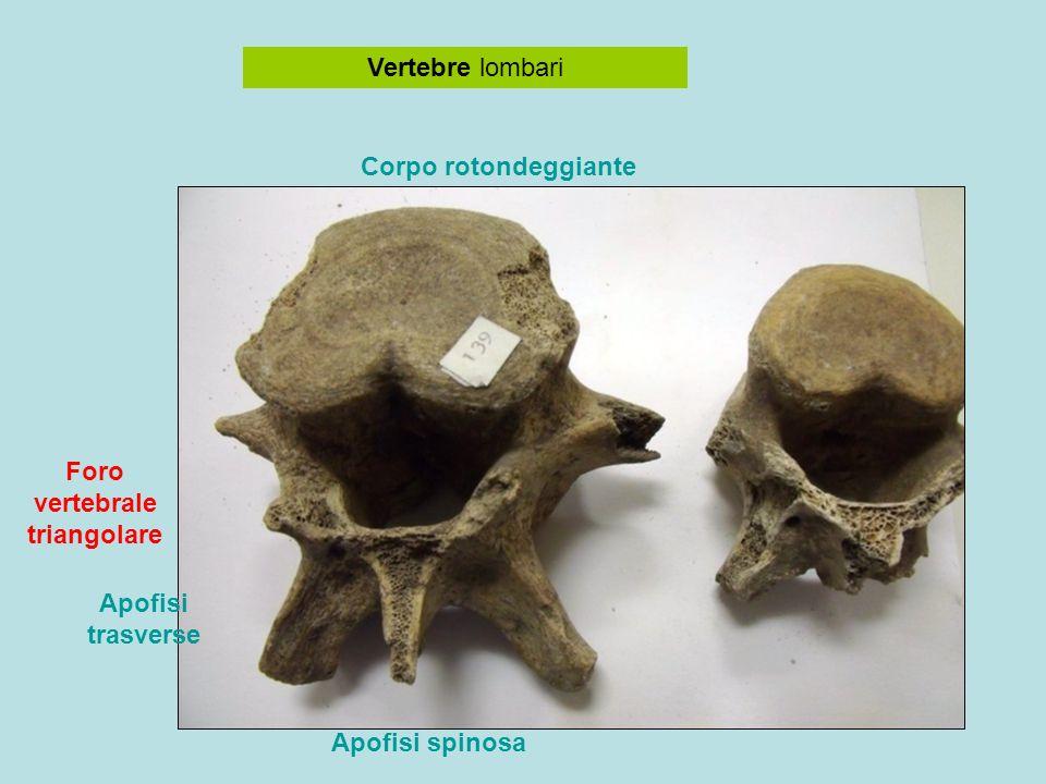 Vertebre lombari Corpo rotondeggiante Apofisi spinosa Foro vertebrale triangolare Apofisi trasverse
