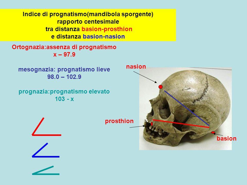 Ortognazia:assenza di prognatismo x – 97.9 mesognazia: prognatismo lieve 98.0 – 102.9 prognazia:prognatismo elevato 103 - x Indice di prognatismo(mand