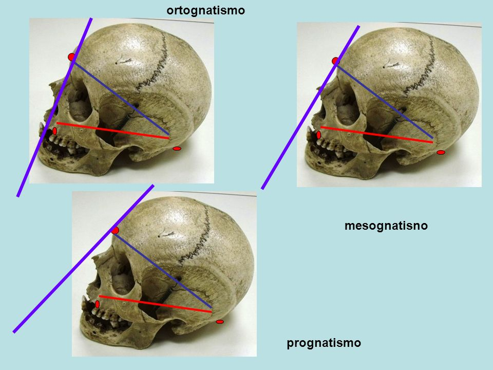 prognatismo mesognatisno ortognatismo