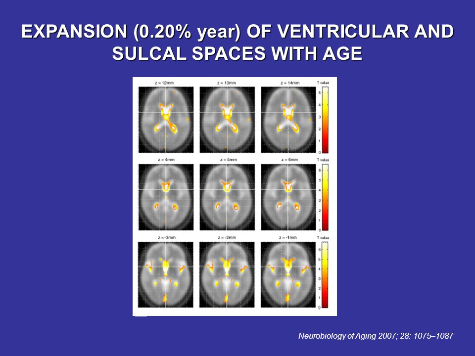EXPANSION (0.20% year) OF VENTRICULAR AND SULCAL SPACES WITH AGE Neurobiology of Aging 2007; 28: 1075–1087