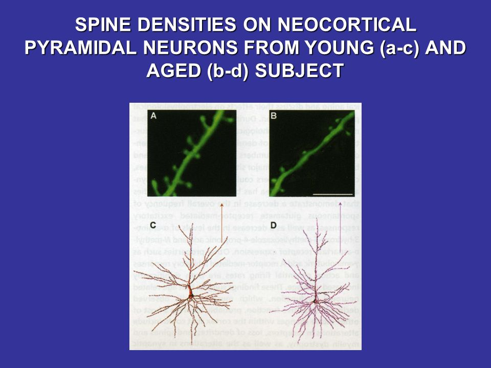 SPINE DENSITIES ON NEOCORTICAL PYRAMIDAL NEURONS FROM YOUNG (a-c) AND AGED (b-d) SUBJECT