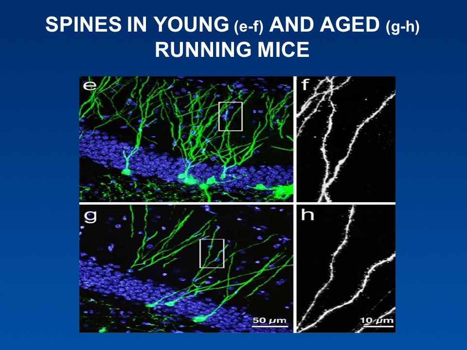 SPINES IN YOUNG (e-f) AND AGED (g-h) RUNNING MICE