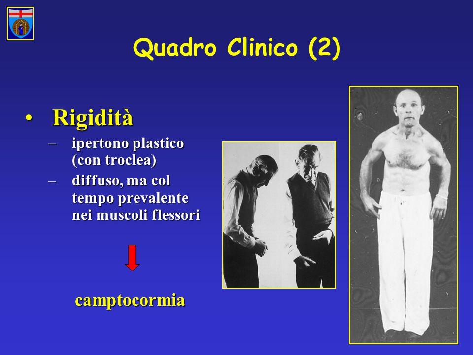Quadro Clinico (2) RigiditàRigidità –ipertono plastico (con troclea) –diffuso, ma col tempo prevalente nei muscoli flessori camptocormia