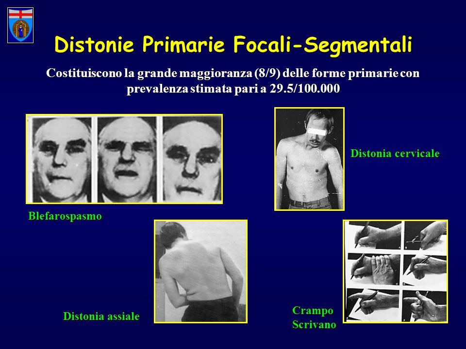 Distonie Primarie Focali-Segmentali Costituiscono la grande maggioranza (8/9) delle forme primarie con prevalenza stimata pari a 29.5/100.000 Blefaros