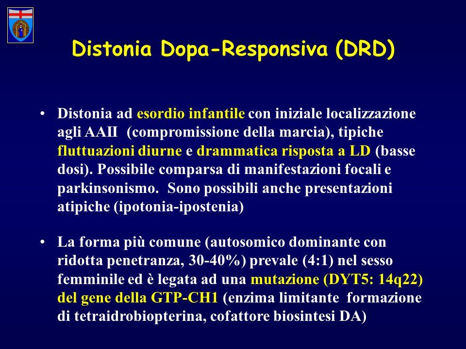 Distonia Dopa-Responsiva (DRD) Distonia ad esordio infantile con iniziale localizzazione agli AAII (compromissione della marcia), tipiche fluttuazioni
