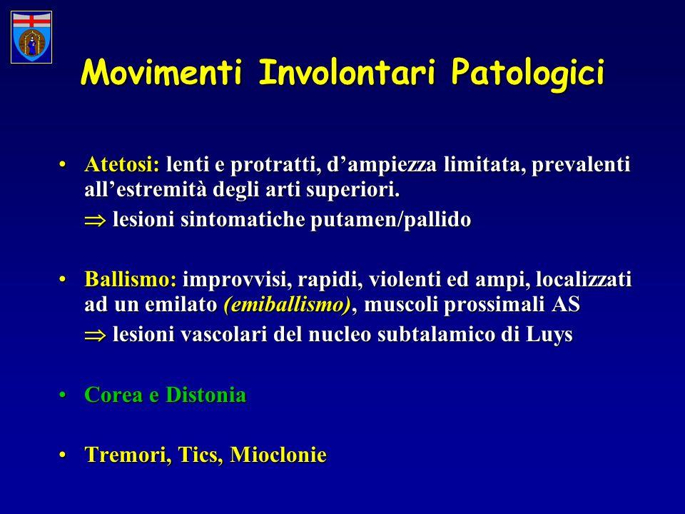 Movimenti Involontari Patologici Atetosi: lenti e protratti, dampiezza limitata, prevalenti allestremità degli arti superiori.Atetosi: lenti e protratti, dampiezza limitata, prevalenti allestremità degli arti superiori.