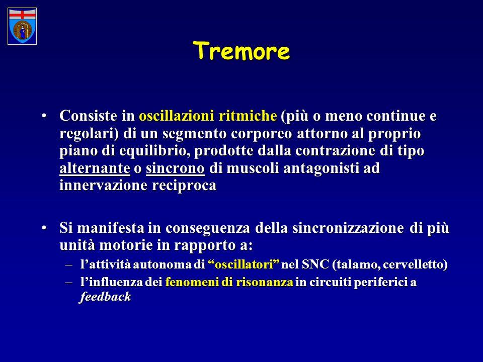 Tremore Consiste in oscillazioni ritmiche (più o meno continue e regolari) di un segmento corporeo attorno al proprio piano di equilibrio, prodotte da