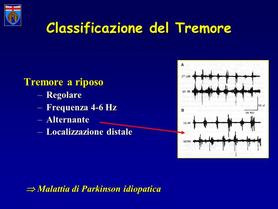 Classificazione del Tremore Tremore a riposo –Regolare –Frequenza 4-6 Hz –Alternante –Localizzazione distale Malattia di Parkinson idiopatica Malattia
