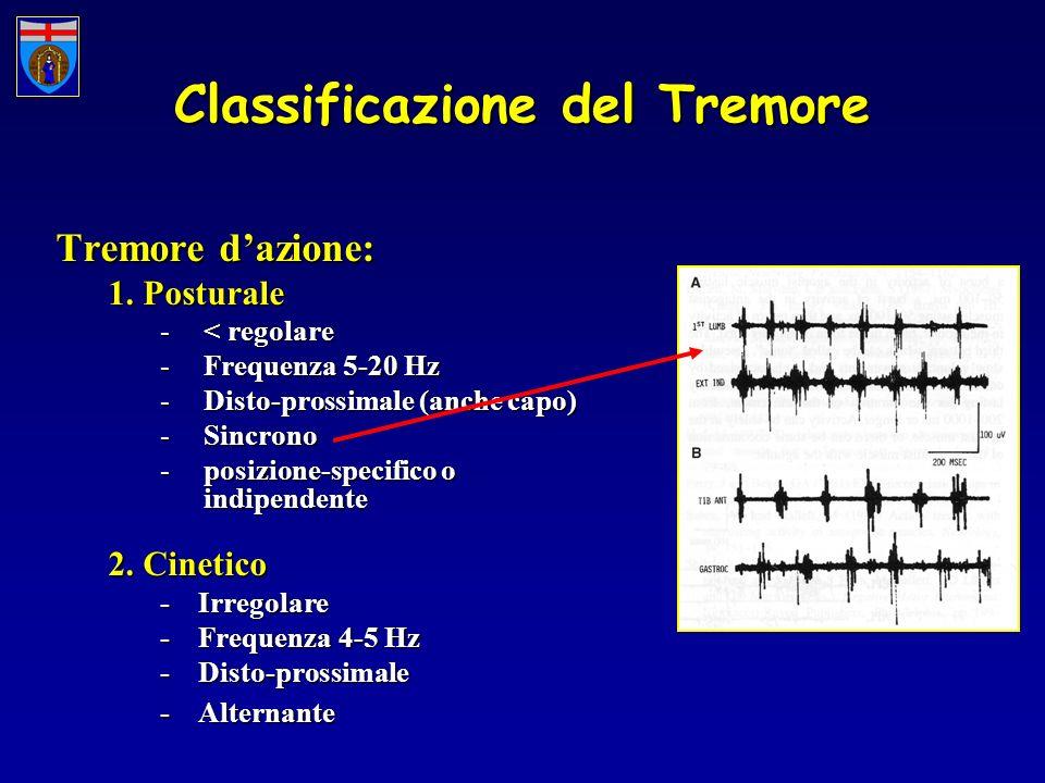 Classificazione del Tremore Tremore dazione: 1. Posturale -< regolare -Frequenza 5-20 Hz -Disto-prossimale (anche capo) -Sincrono -posizione-specifico
