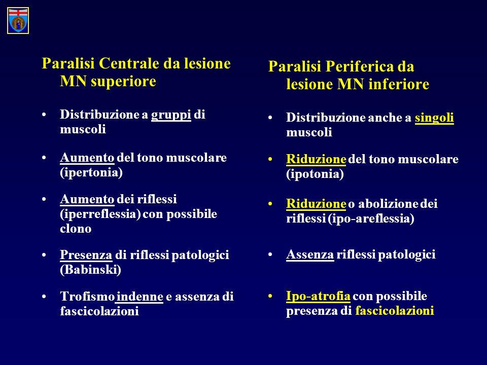Paralisi Centrale da lesione MN superiore Distribuzione a gruppi di muscoli Aumento del tono muscolare (ipertonia) Aumento dei riflessi (iperreflessia