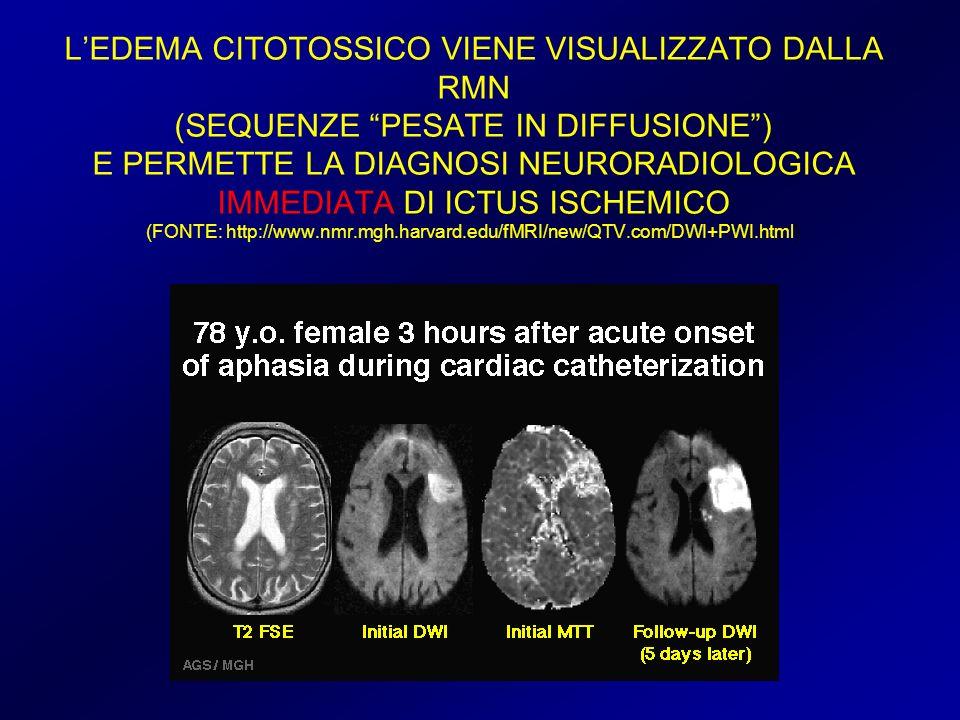 LEDEMA CITOTOSSICO VIENE VISUALIZZATO DALLA RMN (SEQUENZE PESATE IN DIFFUSIONE) E PERMETTE LA DIAGNOSI NEURORADIOLOGICA IMMEDIATA DI ICTUS ISCHEMICO (