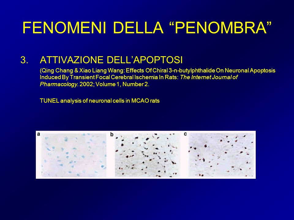 FENOMENI DELLA PENOMBRA 3.ATTIVAZIONE DELLAPOPTOSI (Qing Chang & Xiao Liang Wang: Effects Of Chiral 3-n-butylphthalide On Neuronal Apoptosis Induced B