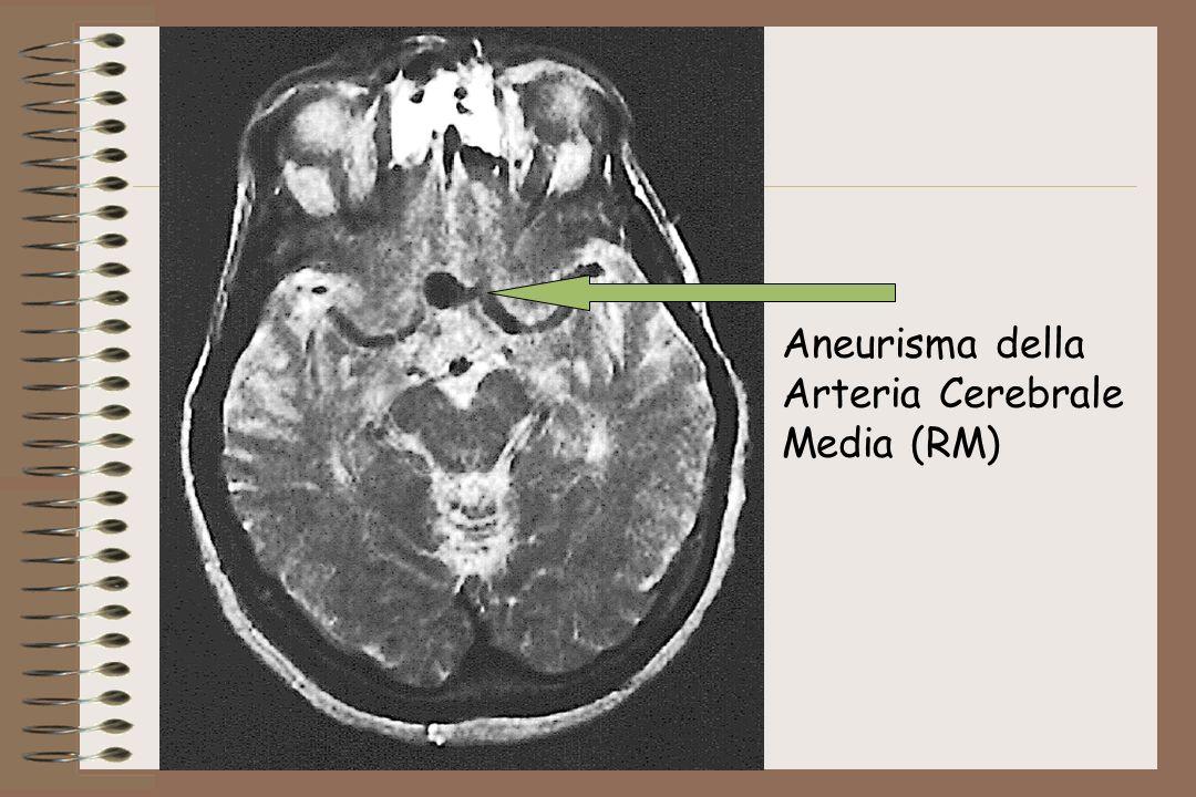 Aneurisma della Arteria Cerebrale Media (RM)