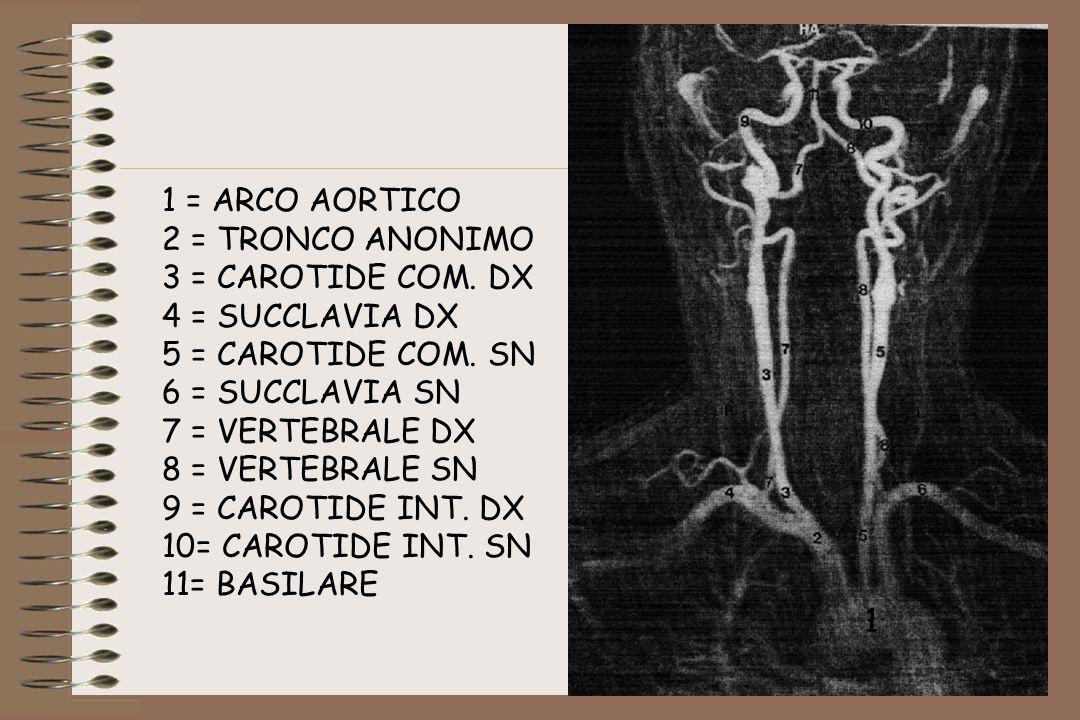 1 = ARCO AORTICO 2 = TRONCO ANONIMO 3 = CAROTIDE COM. DX 4 = SUCCLAVIA DX 5 = CAROTIDE COM. SN 6 = SUCCLAVIA SN 7 = VERTEBRALE DX 8 = VERTEBRALE SN 9