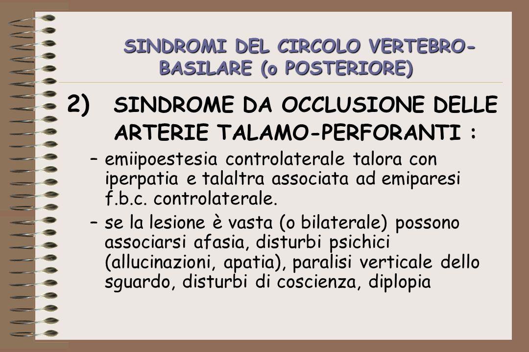 SINDROMI DEL CIRCOLO VERTEBRO- BASILARE (o POSTERIORE) 2) SINDROME DA OCCLUSIONE DELLE ARTERIE TALAMO-PERFORANTI : –emiipoestesia controlaterale talor