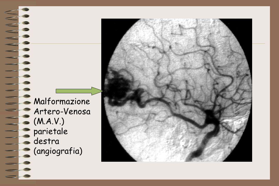 Malformazione Artero-Venosa (M.A.V.) parietale destra (angiografia)