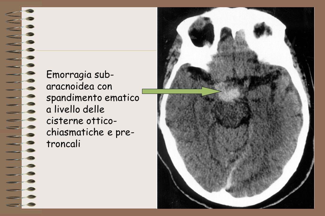 Emorragia sub- aracnoidea con spandimento ematico a livello delle cisterne ottico- chiasmatiche e pre- troncali
