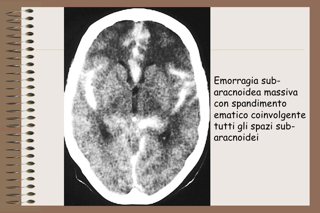 Emorragia sub- aracnoidea massiva con spandimento ematico coinvolgente tutti gli spazi sub- aracnoidei