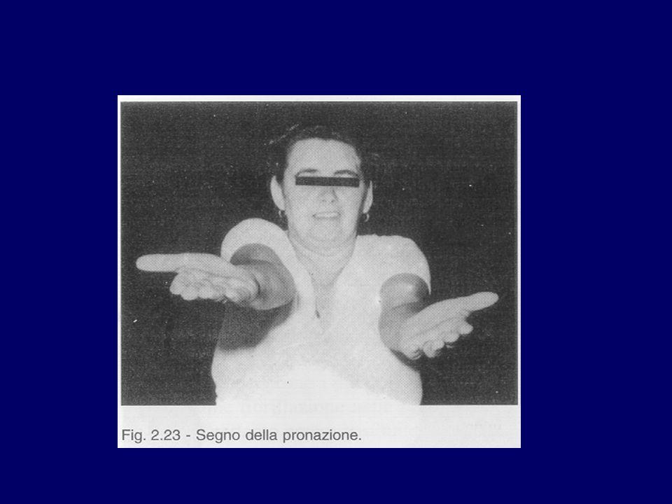 Le paralisi Motoneurone superiore Considerazioni anatomiche e fisiologiche