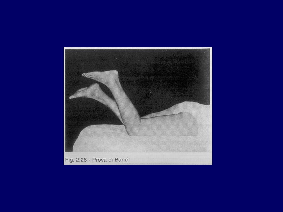 Le paralisi Esame della forza Esame della forza segmentale (Medical Research Council 1962) 0: nessuna contrazione 1: accenno a contrazione senza spostamento di segmenti ossei 2: spostamento di segmento ossei a gravita eliminata 3: spostamento di segmenti contro gravita ma non contro resistenza 4: contro resistenza diminuita 5: contro resistenza normale