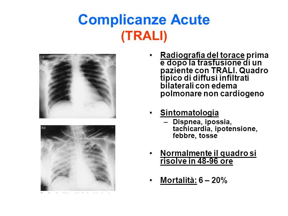 Complicanze Acute (TRALI) Radiografia del torace prima e dopo la trasfusione di un paziente con TRALI. Quadro tipico di diffusi infiltrati bilaterali