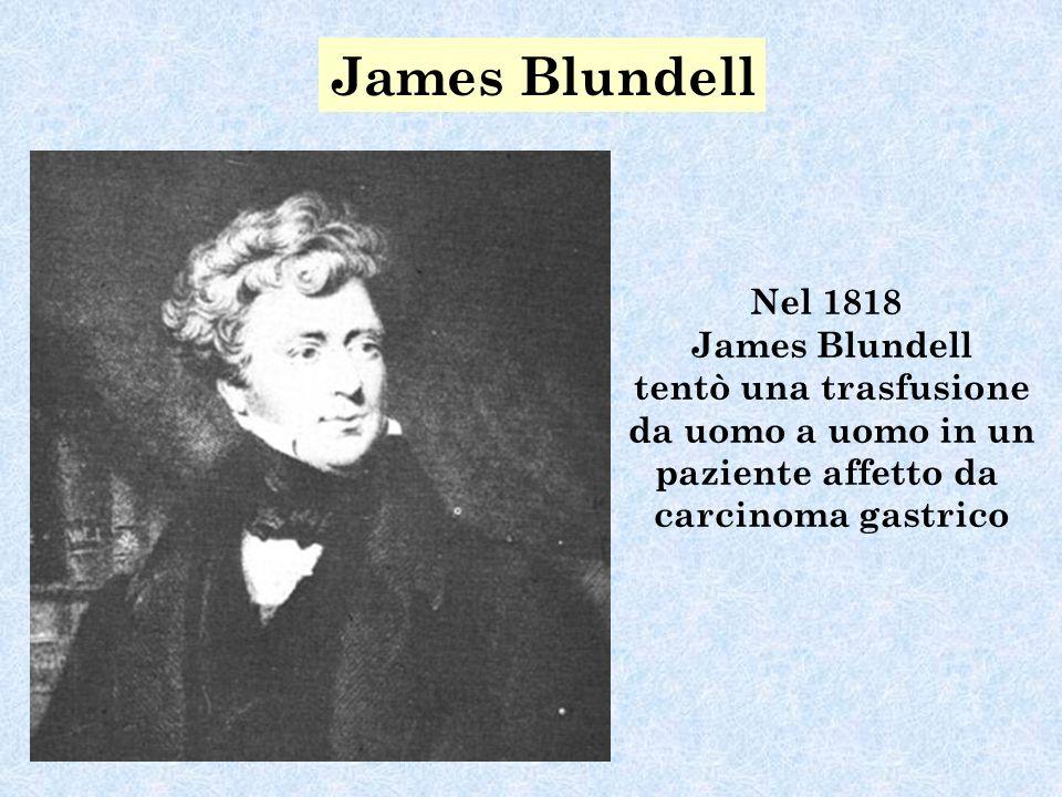 James Blundell Nel 1818 James Blundell tentò una trasfusione da uomo a uomo in un paziente affetto da carcinoma gastrico