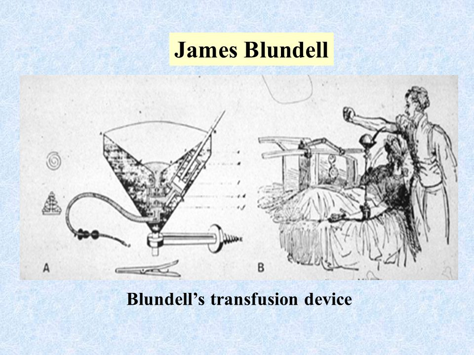 James Blundell Blundells transfusion device