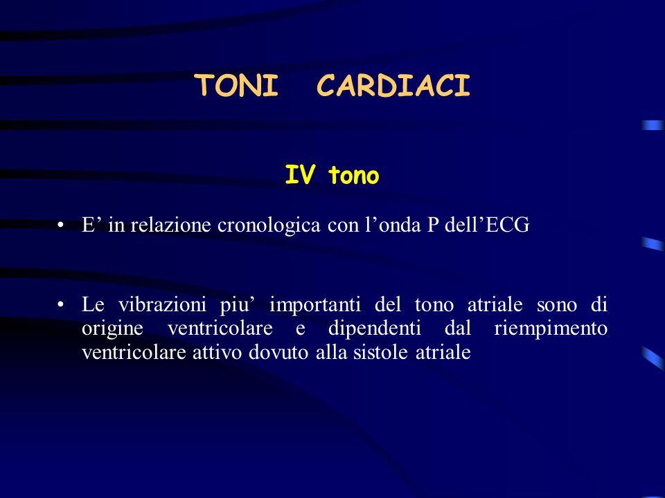 TONI CARDIACI IV tono E in relazione cronologica con londa P dellECG Le vibrazioni piu importanti del tono atriale sono di origine ventricolare e dipe