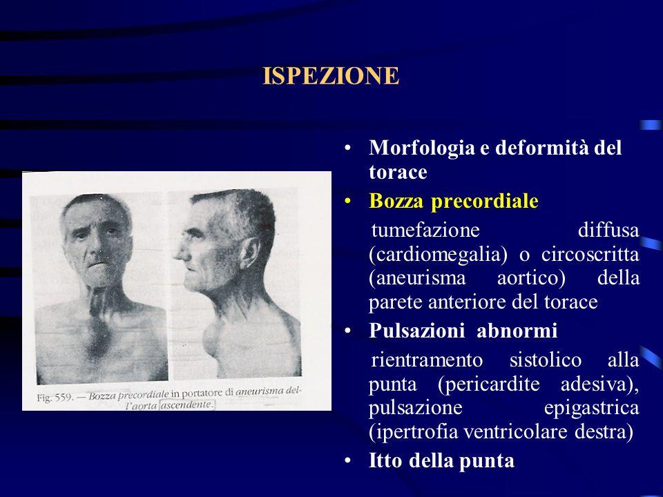 Insufficienza aortica Caratteri dei polsi Polso scoccante di Corrigan, a colpo dariete, dovuta alla rapida velocità di ascesa e successivo collasso diastolico del polso arterioso Polso periferico: ascesa rapida, spesso due picchi (pulsus bisferiens) Pressione differenziale aumentata: iperpulsatilità carotidea che può dare una oscillazione del capo (Segno di De Musset), doppio tono di Traube e doppio soffio di Duroziez sullart.