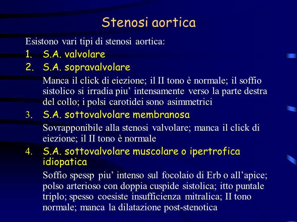 Stenosi aortica Esistono vari tipi di stenosi aortica: 1.S.A. valvolare 2.S.A. sopravalvolare Manca il click di eiezione; il II tono è normale; il sof