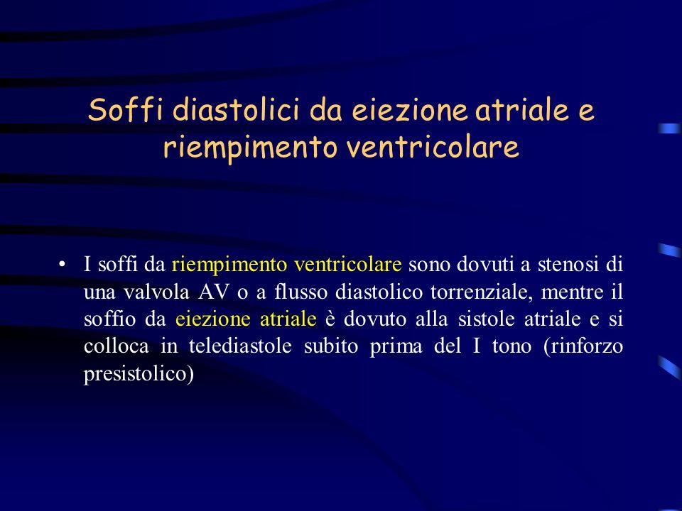 Soffi diastolici da eiezione atriale e riempimento ventricolare I soffi da riempimento ventricolare sono dovuti a stenosi di una valvola AV o a flusso