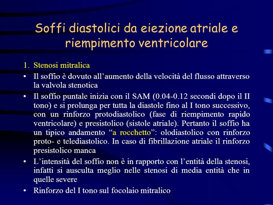 Soffi diastolici da eiezione atriale e riempimento ventricolare 1.Stenosi mitralica Il soffio è dovuto allaumento della velocità del flusso attraverso