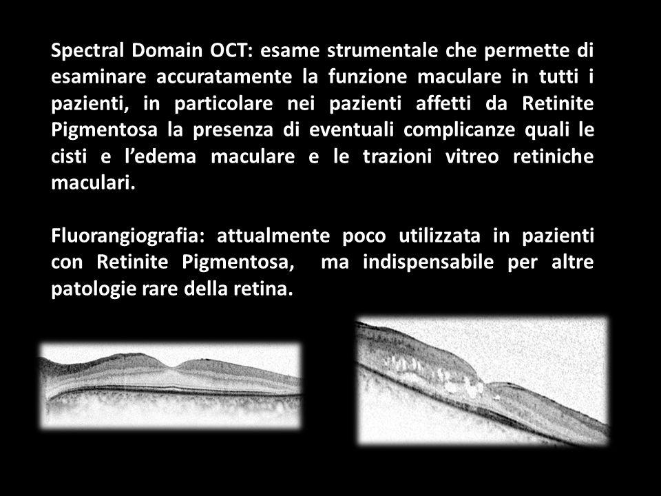 Spectral Domain OCT: esame strumentale che permette di esaminare accuratamente la funzione maculare in tutti i pazienti, in particolare nei pazienti a