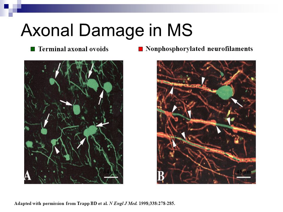 Terminal axonal ovoids Adapted with permission from Trapp BD et al. N Engl J Med. 1998;338:278-285. Nonphosphorylated neurofilaments Axonal Damage in
