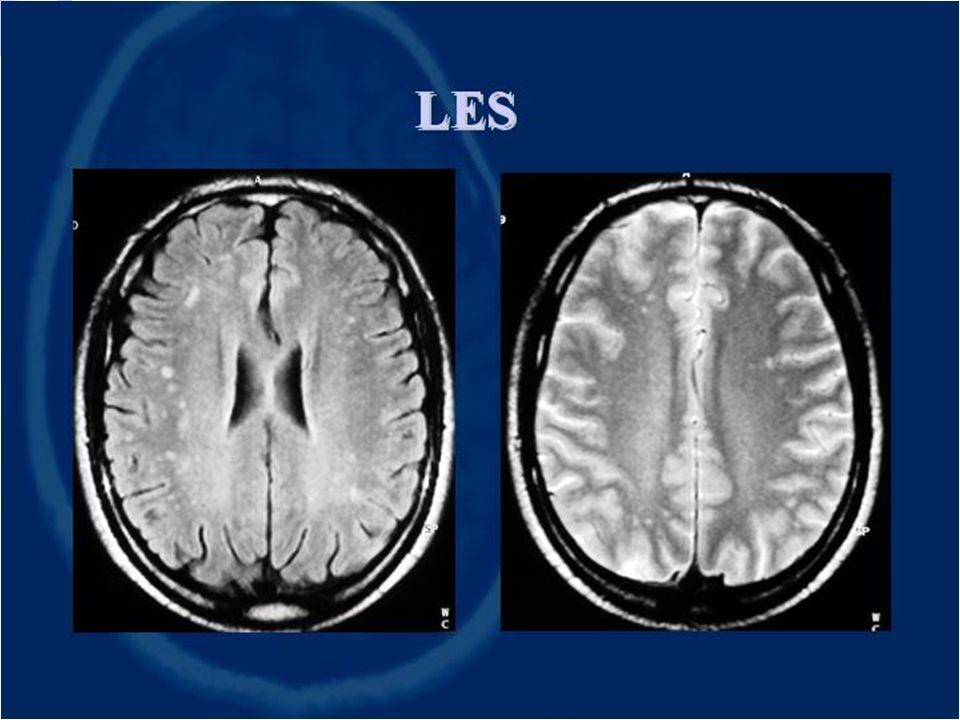 Sclerosi Multipla Patologia infiammatoria demielinizzante, multifocale sia temporalmente sia spazialmente del sistema nervoso centrale a verosimile pa
