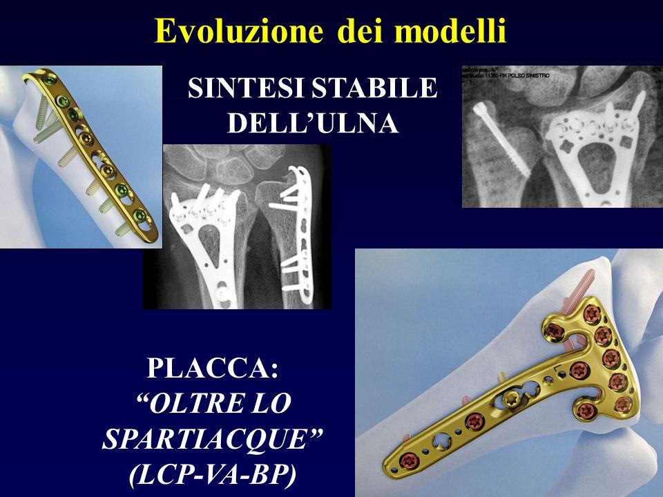 Evoluzione dei modelli PLACCA: OLTRE LO SPARTIACQUE (LCP-VA-BP) SINTESI STABILE DELLULNA