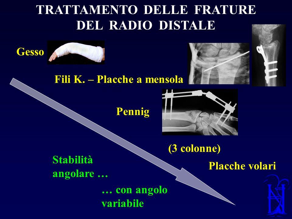 TRATTAMENTO DELLE FRATURE DEL RADIO DISTALE Stabilità angolare … … con angolo variabile Fili K. – Placche a mensola Gesso Pennig (3 colonne) Placche v