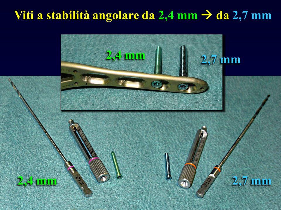 2,4 mm 2,7 mm Viti a stabilità angolare da 2,4 mm da 2,7 mm 2,4 mm 2,7 mm