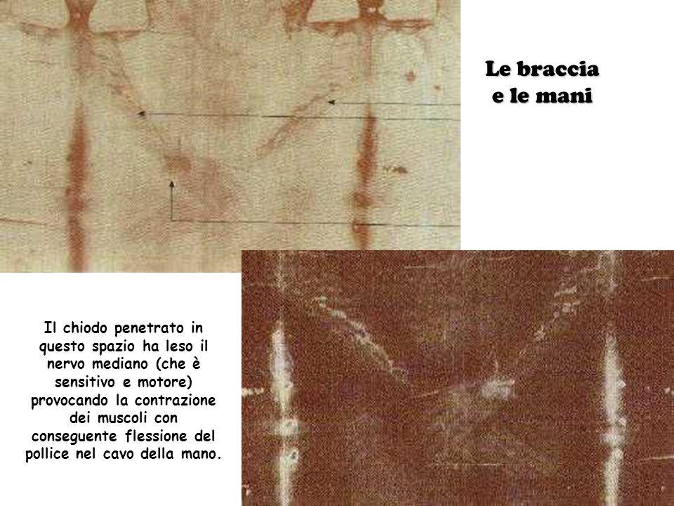 Il chiodo penetrato in questo spazio ha leso il nervo mediano (che è sensitivo e motore) provocando la contrazione dei muscoli con conseguente flessione del pollice nel cavo della mano.