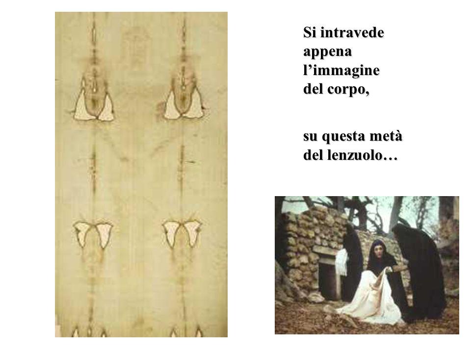 Il torace e la schiena Si intravedono i segni della flagellazione… …e il segno della croce portata