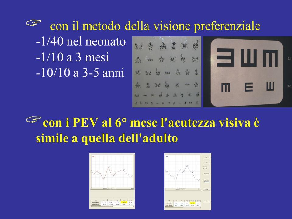 con il metodo della visione preferenziale -1/40 nel neonato -1/10 a 3 mesi -10/10 a 3-5 anni con i PEV al 6° mese l'acutezza visiva è simile a quella