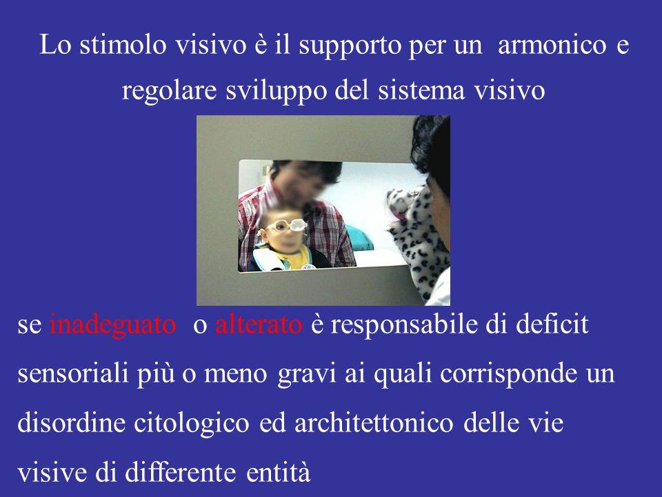 Lo stimolo visivo è il supporto per un armonico e regolare sviluppo del sistema visivo se inadeguato o alterato è responsabile di deficit sensoriali più o meno gravi ai quali corrisponde un disordine citologico ed architettonico delle vie visive di differente entità